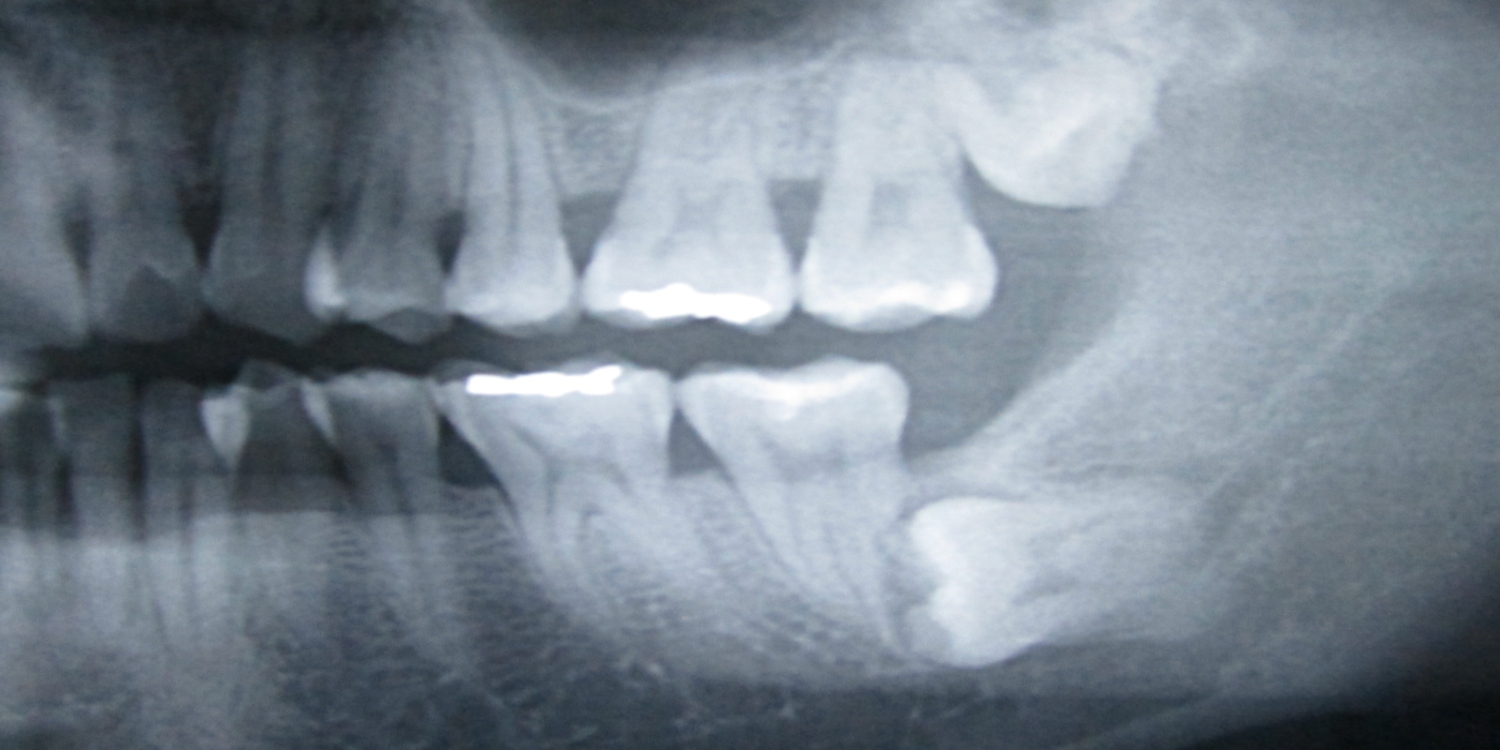 Wisdom Teeth Pain- What are your Options? Ask Dr Jamie
