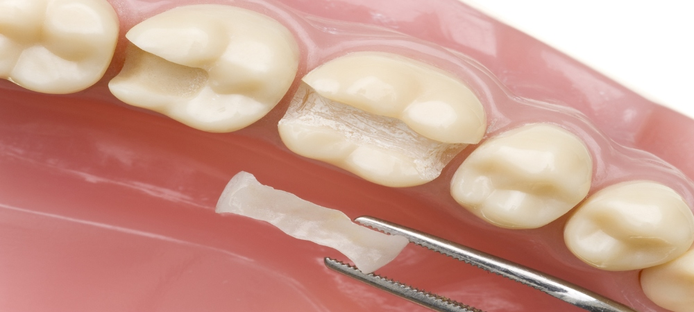Maroubran Dentist, Dr Jamie Explains How Inlays Can Be a
